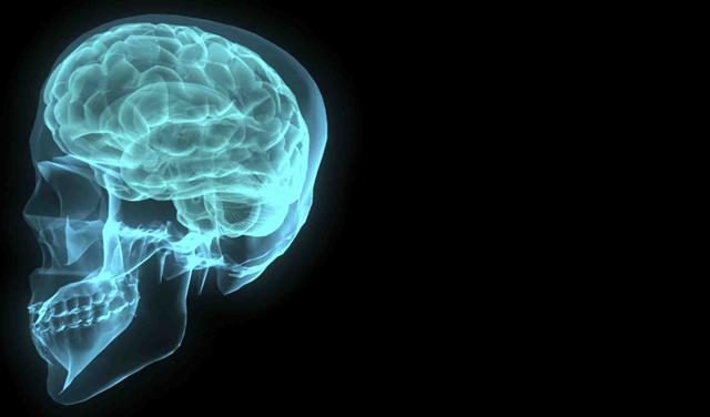 mozak.jpg